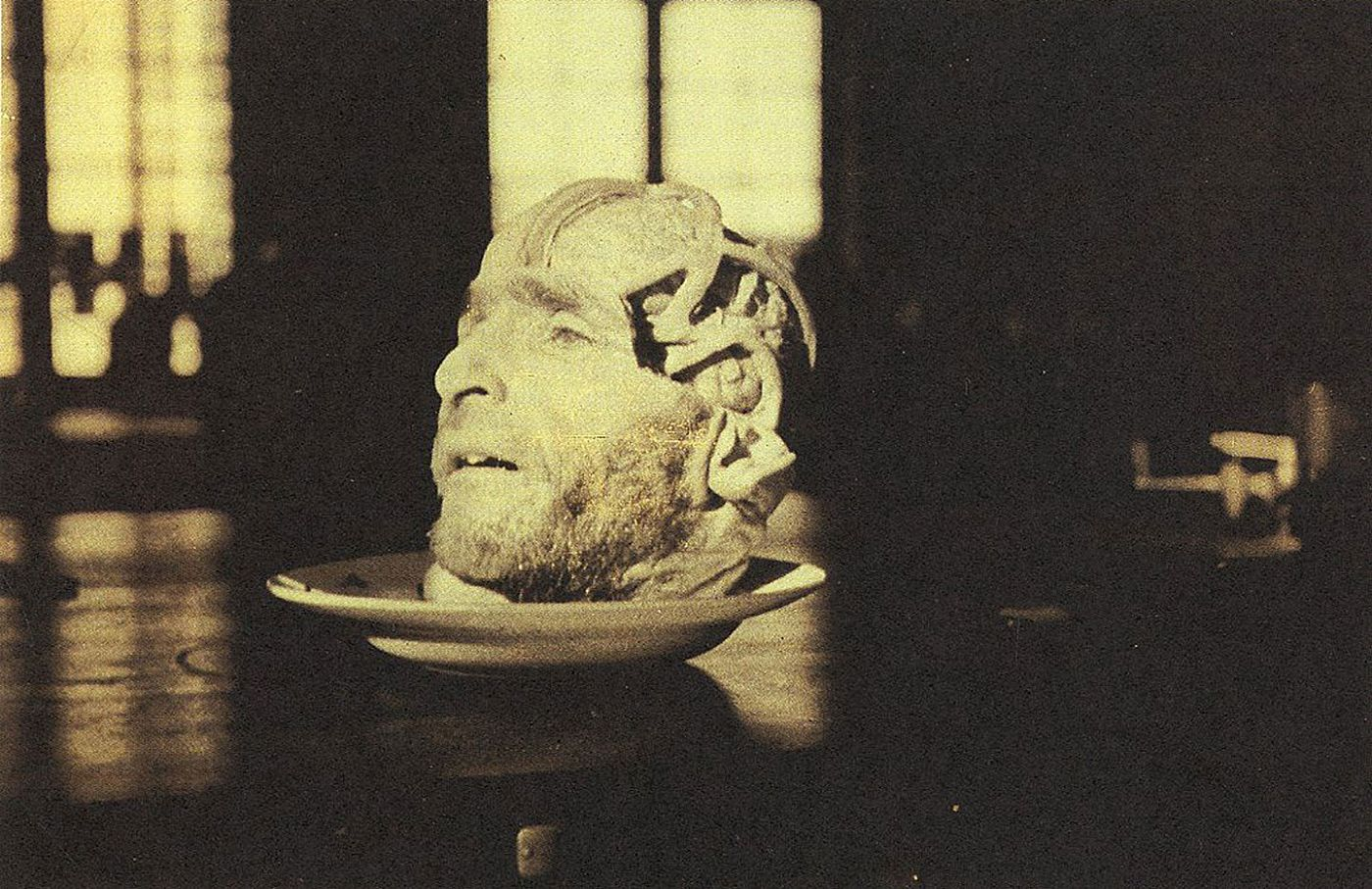 Masterpieces of Medical Photography: Selections from the Burns Archive